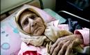 Grote verschillen in volksgezondheid tussen Israëli's en Palestijnen in bezette gebieden