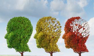 Brain Aging - Kalvicio de las Nieves
