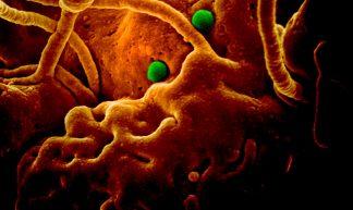 MERS Coronavirus Particles - NIAID